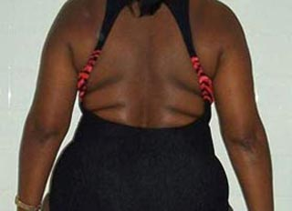 Beverly Before Weight Loss